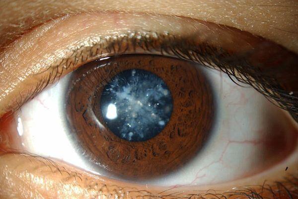 Гимнастика при катаракте