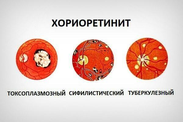 Виды хориоретинита