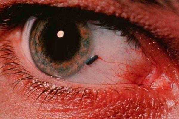 Инородный предмет в глазу
