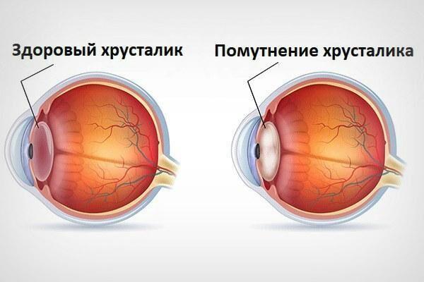 Катаракта глаза