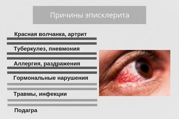 Причины эписклерита