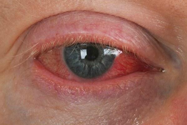 Глаза после употребления алкоголя