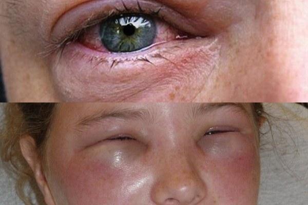 Аллергические причины отека век