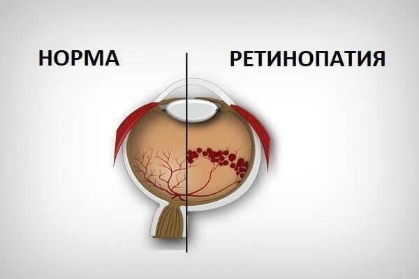 Нормальный орган зрения и ретинопатия