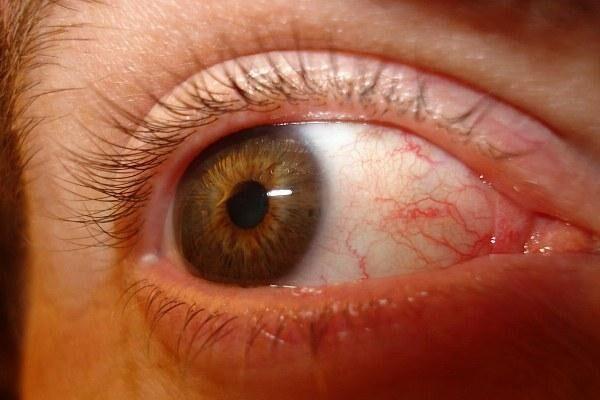 Усталость глаз при синдроме сухого глаза