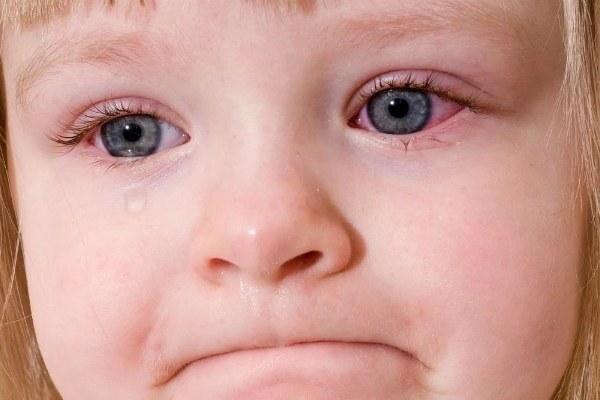 Покраснение глаз у детей