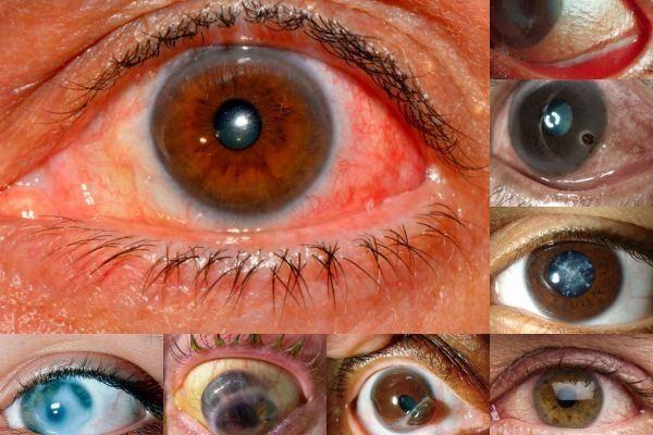 Осложнения эписклерита