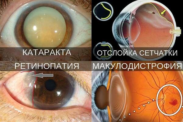 Офтальмопатологии при дальнозоркости