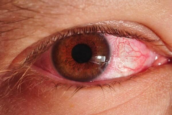 Ожог глаза острым перцем