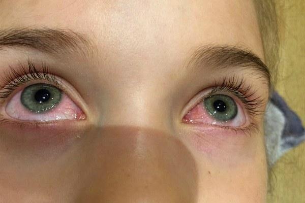 Зуд и слезотечение глаз