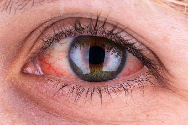 Герпетический конъюнктивит на глазу