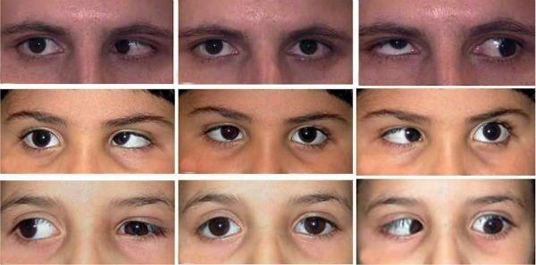 Глазное заболевание синдром Дуэйна