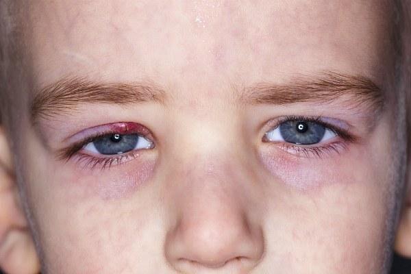 Ячмень на глазу у ребенка