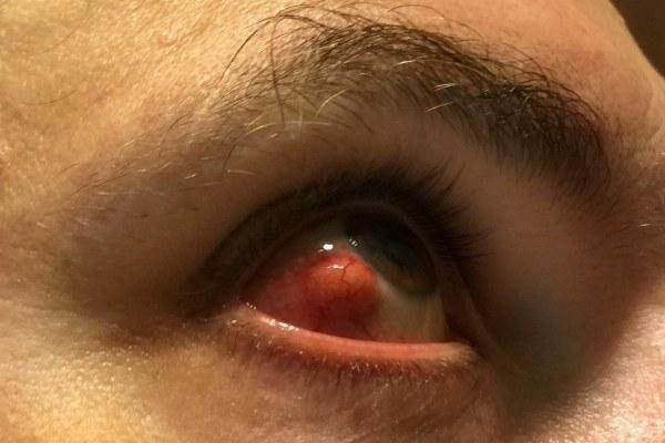 Склерит глаза у молодого человека