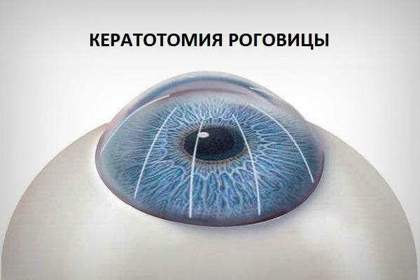 Кератотомия