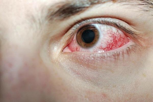 Ожог глаза от сварки