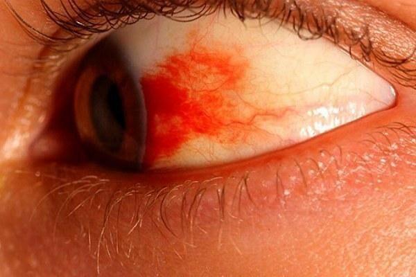 Ожог на слизистой глаза