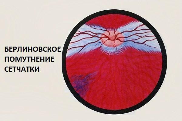 Берлиновское помутнение при ретинопатии