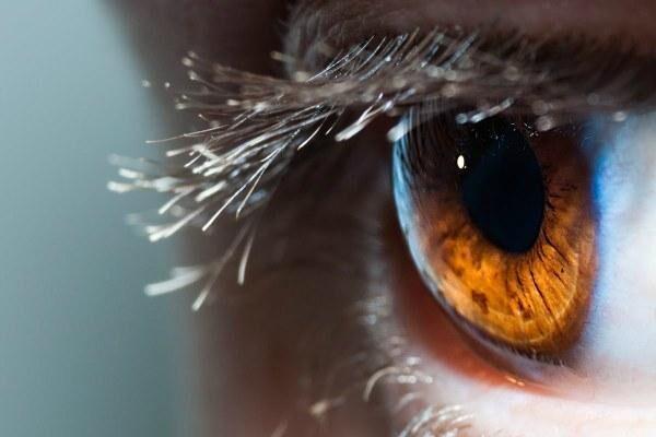 Ретиношизис сетчатки глаза