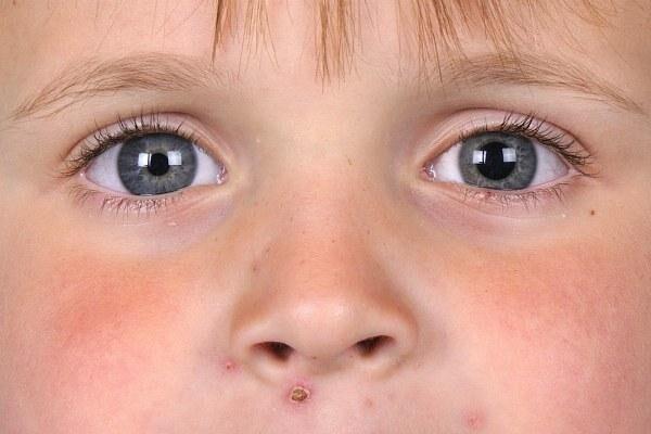 Ребенок с анизокорией глаз