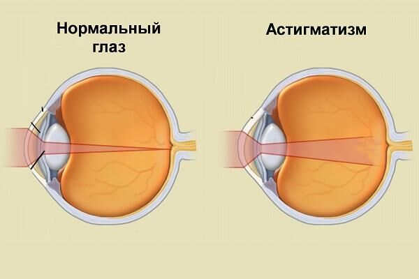 Зрительный аппарат в норме и при астигматизме