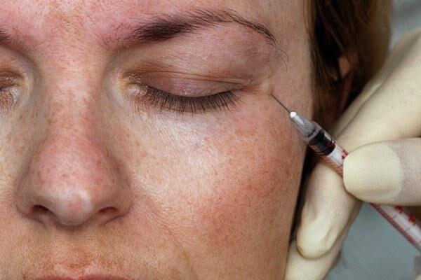 Введение ботокса при блефароспазме