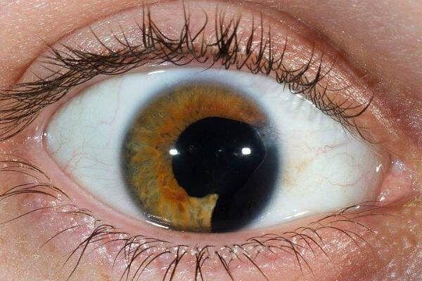 Редкая болезнь колобома глаза
