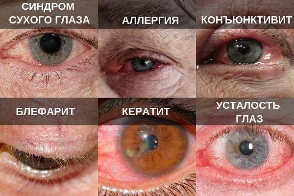 Причины слезотечения глаз