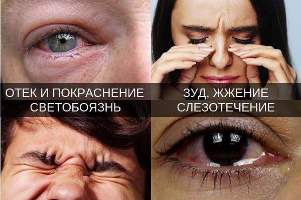 Симптомы катарального конъюнктивита