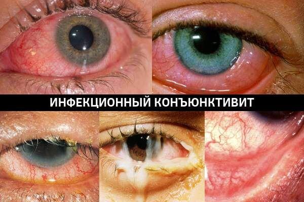 Виды инфекционного конъюнктивита