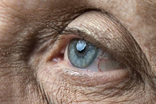 Макулодистрофия сетчатки глаза у пожилого человека