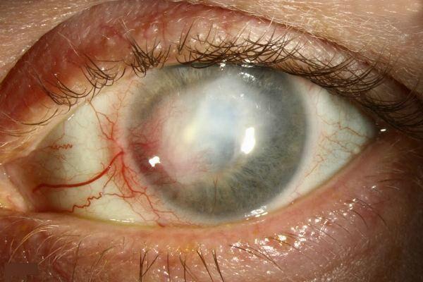Заболевание герпетический кератит