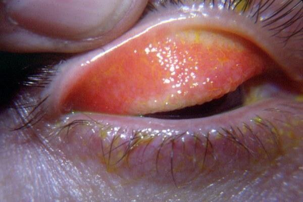 Воспаление глаз при грибковом конъюнктивите