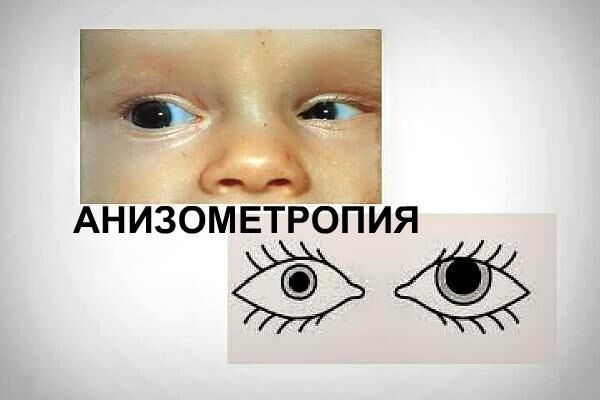 Схематично: анизометропия у ребенка