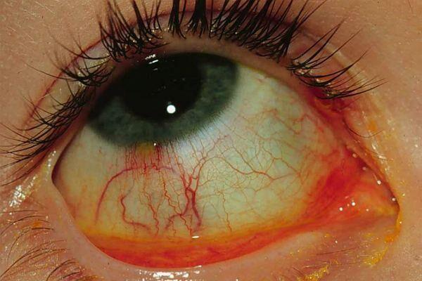 Конъюнктивит катаральный глаза