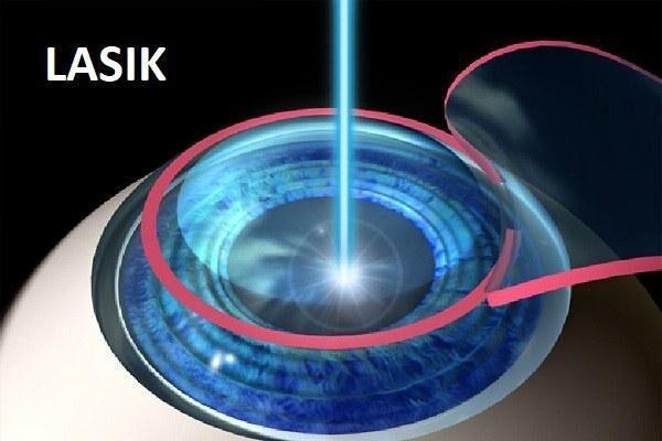 Лазерная коррекция LASIK