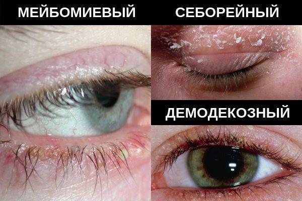 Формы блефарита