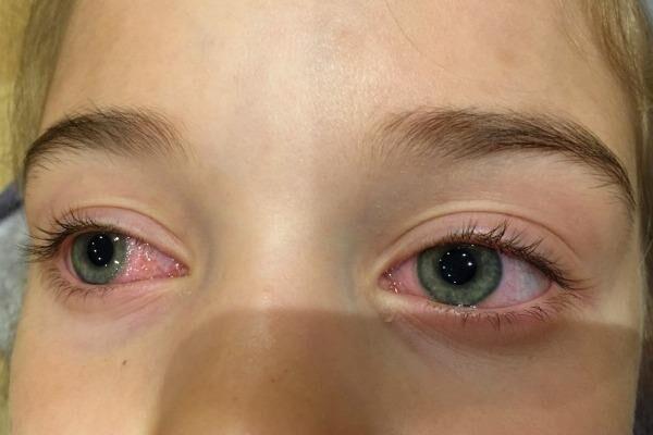 Частое моргание при аллергической реакции глаз