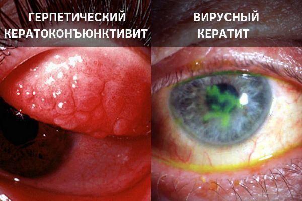 Осложнения герпетического конъюнктивита