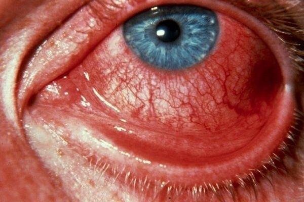 Геморрагический конъюнктивит глаза