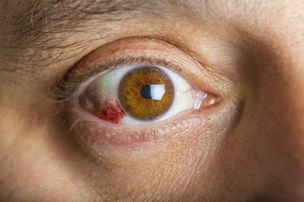 Заболевание ретинопатия