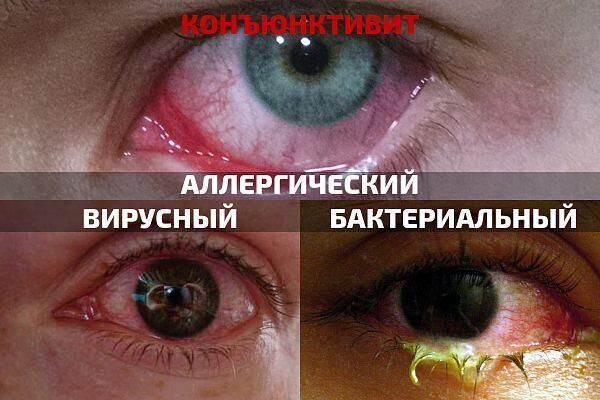 Конъюнктивит симптоматика