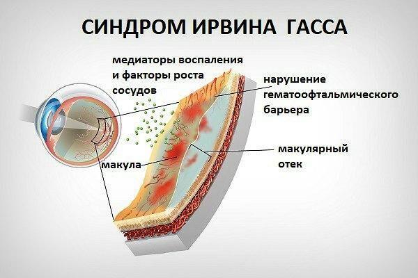 Синдром Ирвина Гасса