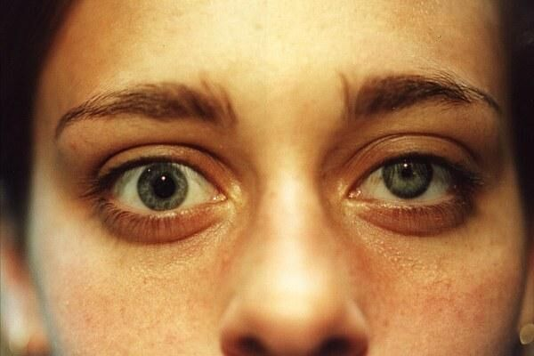 Анизокория у девушки