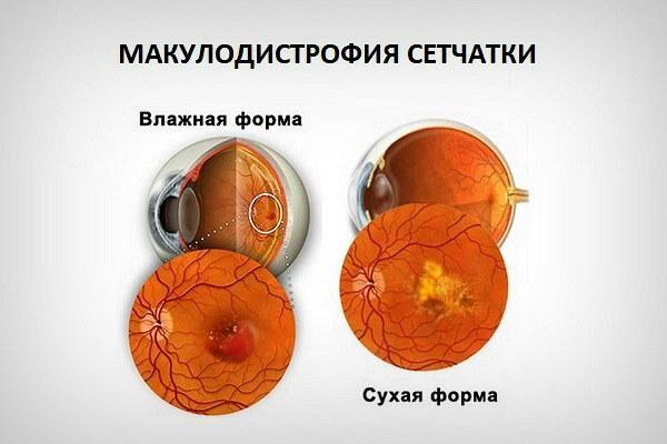 Формы макулодистрофии