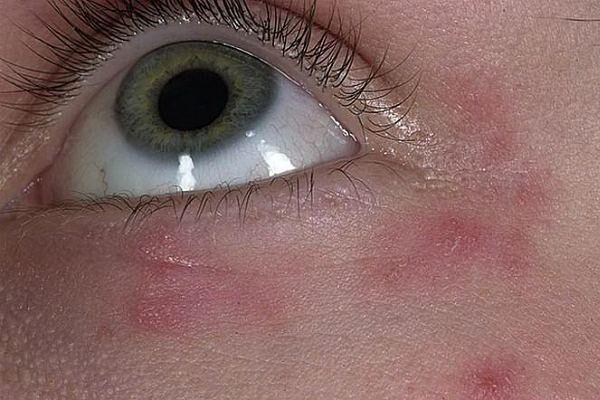 Сыпь вокруг глаз