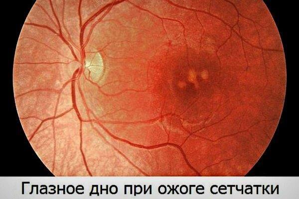 Глазное дно при ожоге сетчатки