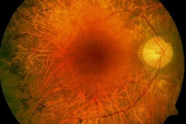 Ретинит сетчатки глаза