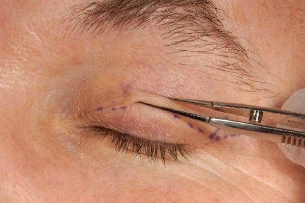 Хирургическая операция при лагофтальме