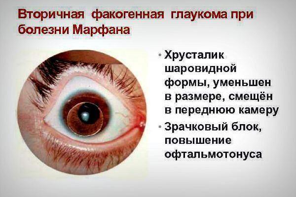 Вторичная факогенная глаукома